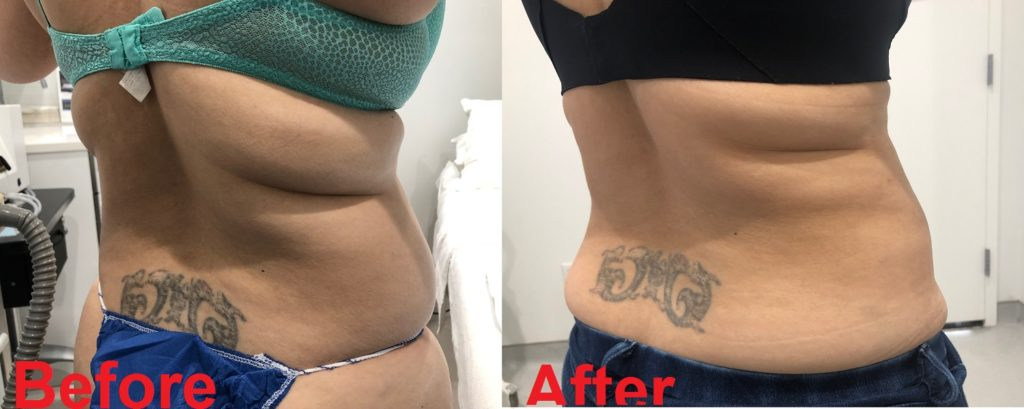 Lipo Waist Bra Rolls Before